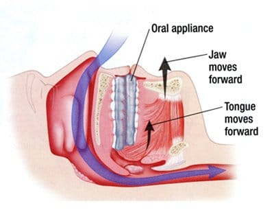 Diagram image of anti-snoring device inserted inside the mouth