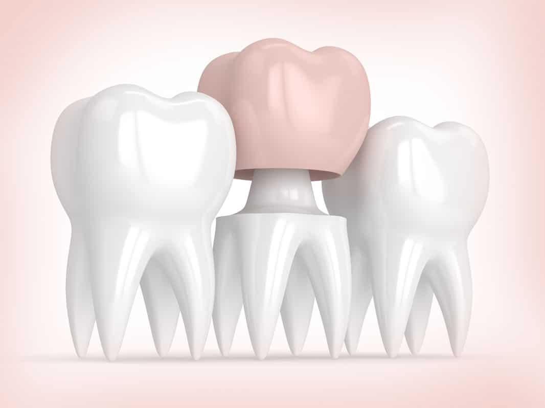 Dentist doing dental treatment