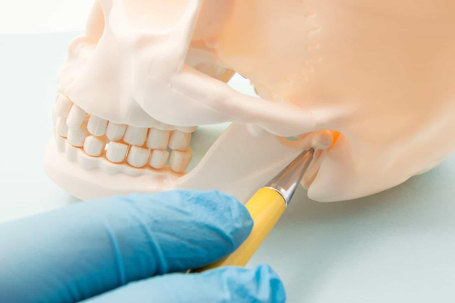 What is Temporomandibular Joint Dysfunction