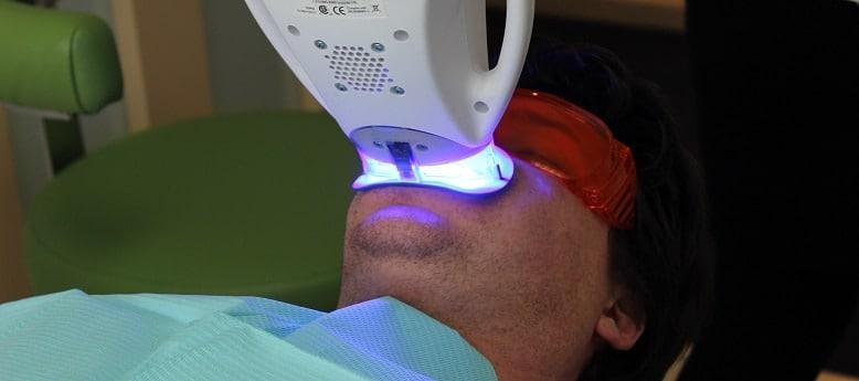 Home Teeth Whitening