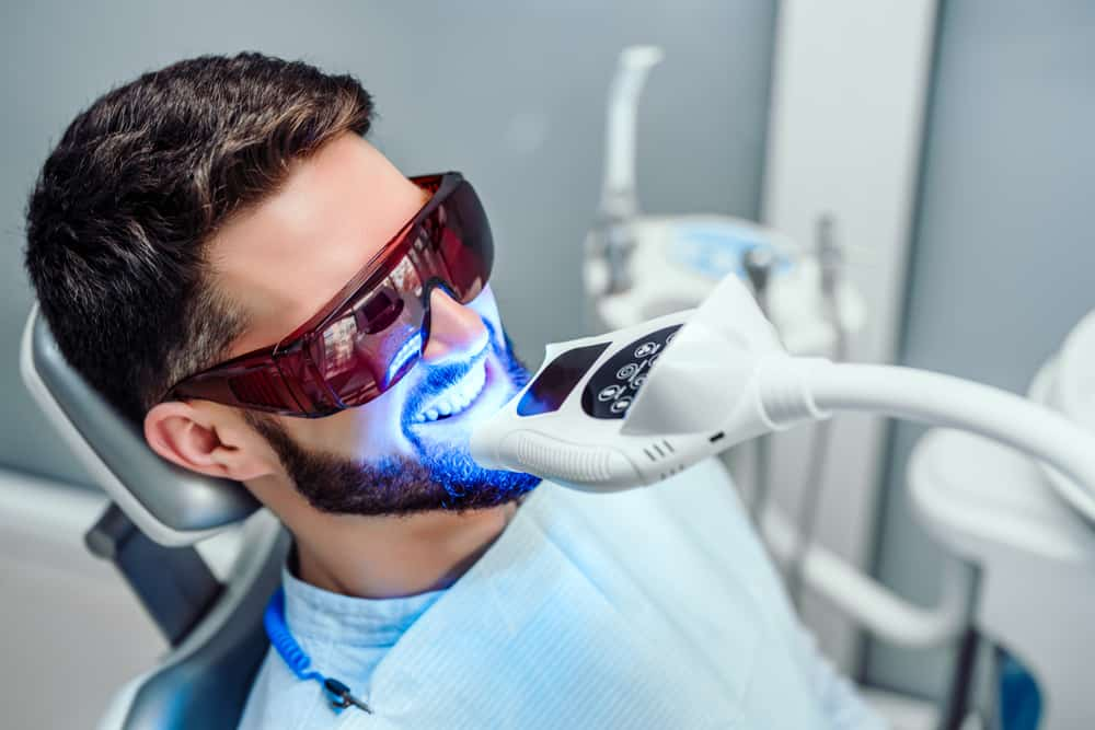 Over the Counter vs Professional Teeth Whitening